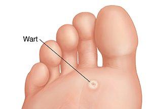 wart toddler foot)