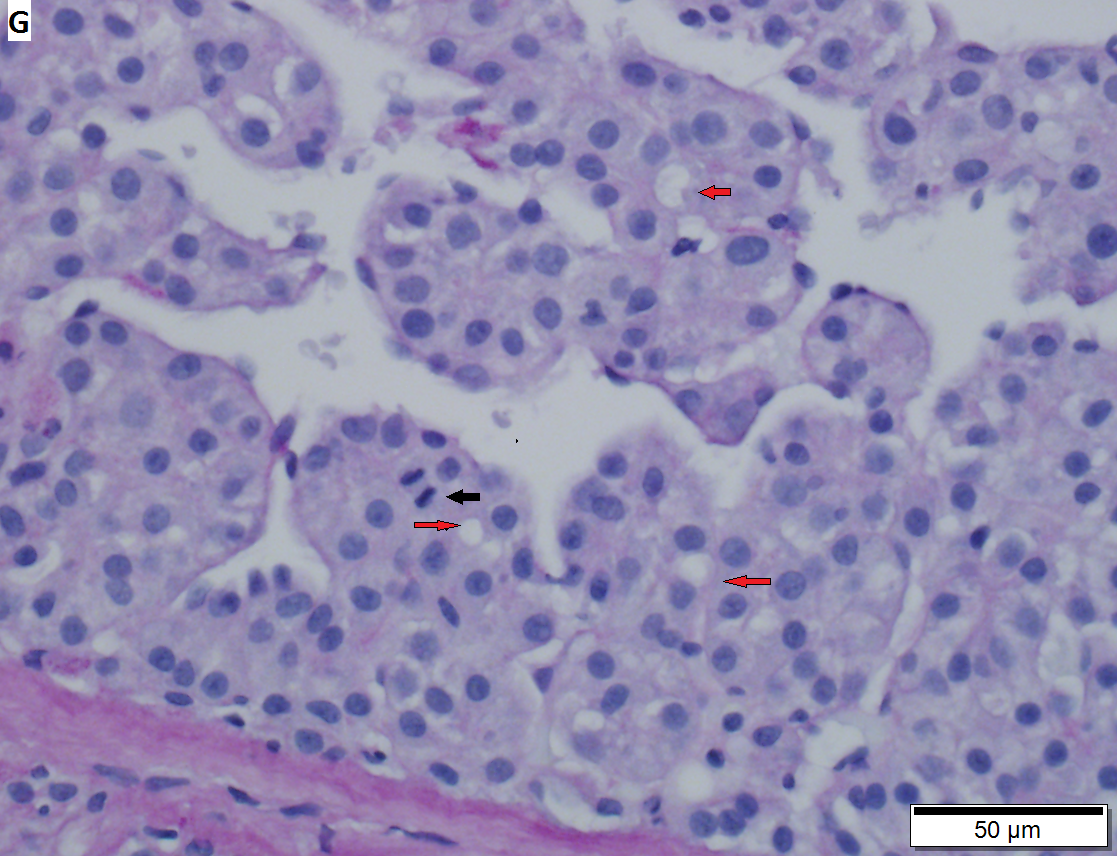 hepatocellular cancer pathology outlines