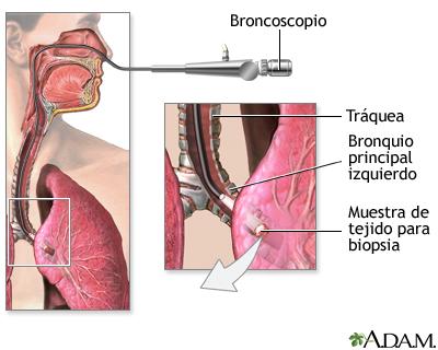 cancer pulmonar p)