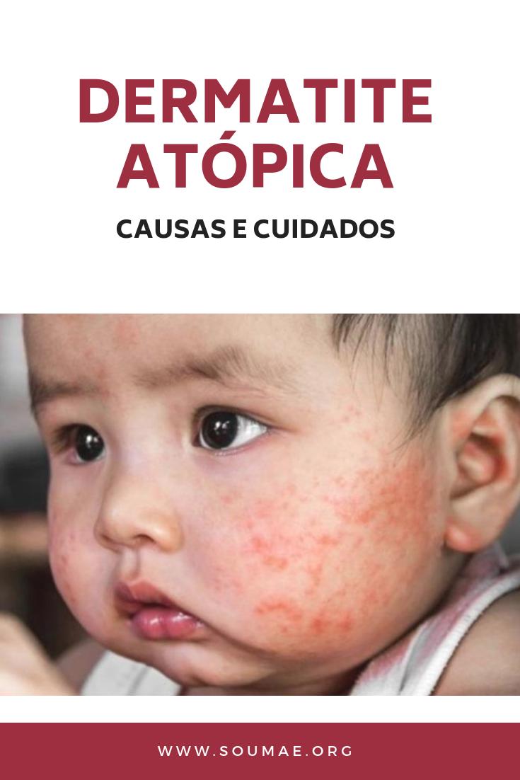 Dermatita atopică: cauze, simptome, tratament