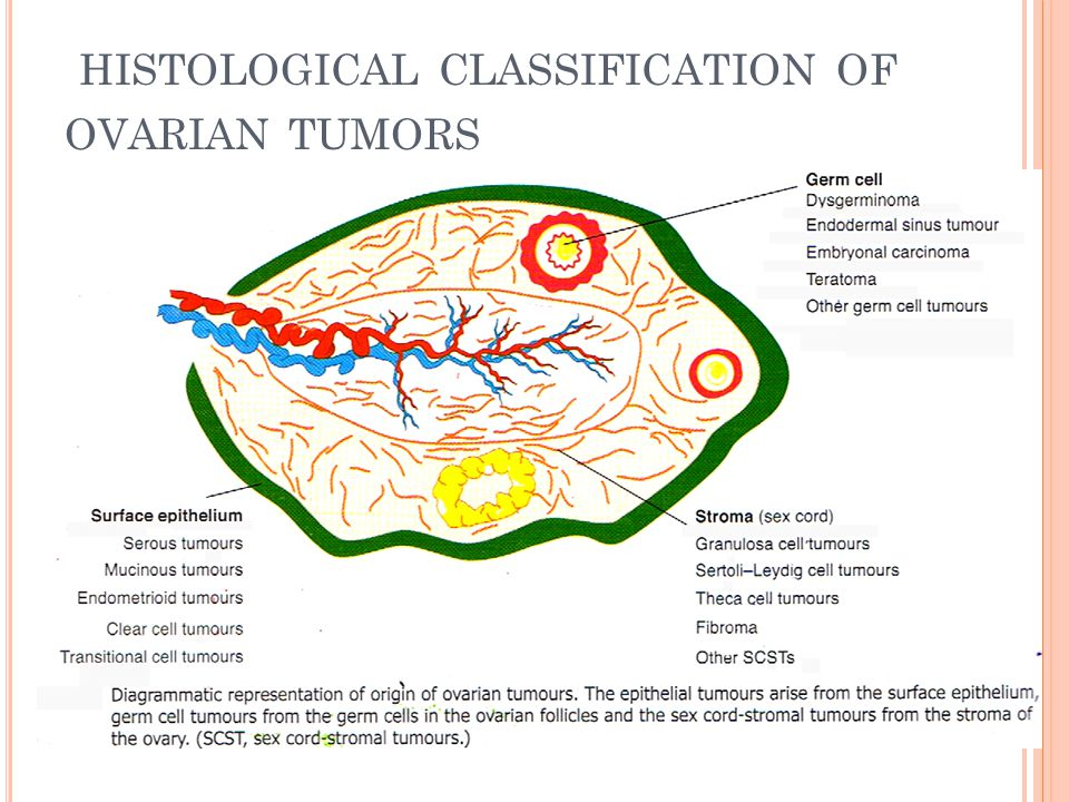 ovarian cancer histological classification