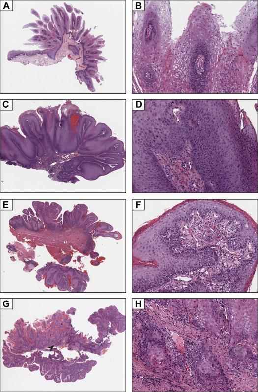 squamous papilloma of tongue histology)