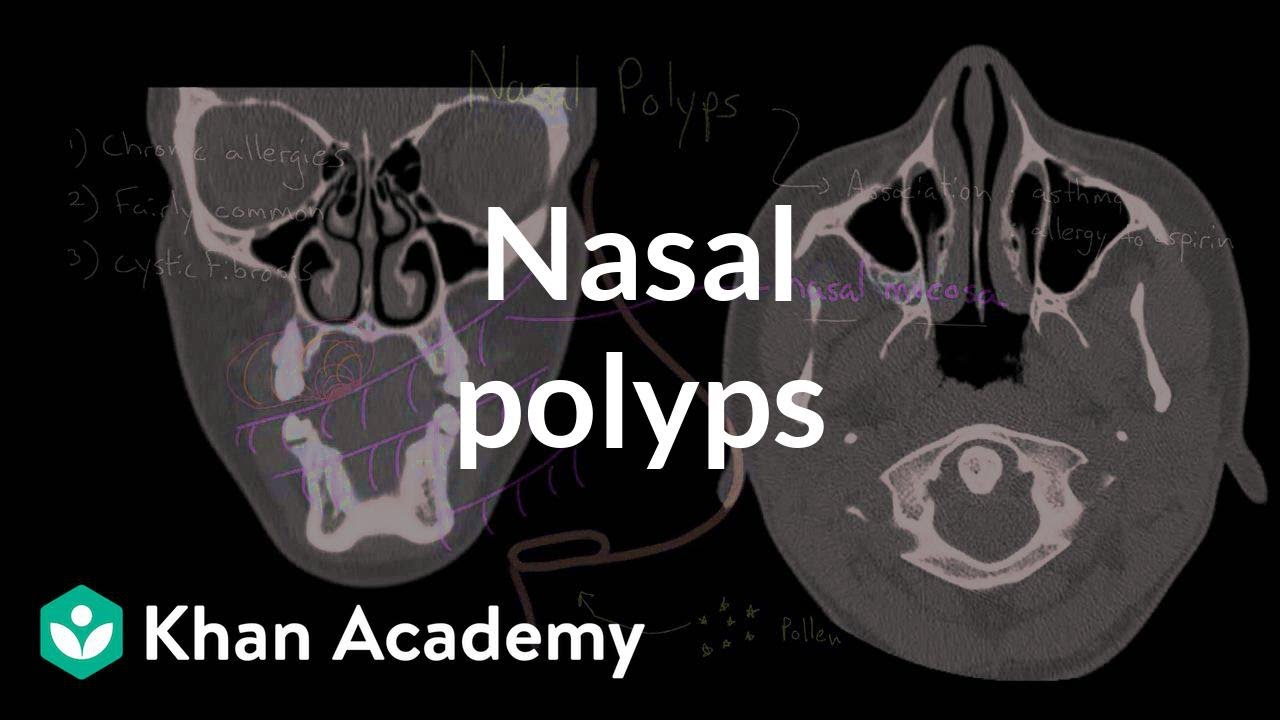 what does nasal papilloma mean)