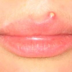 hpv labbra sintomi