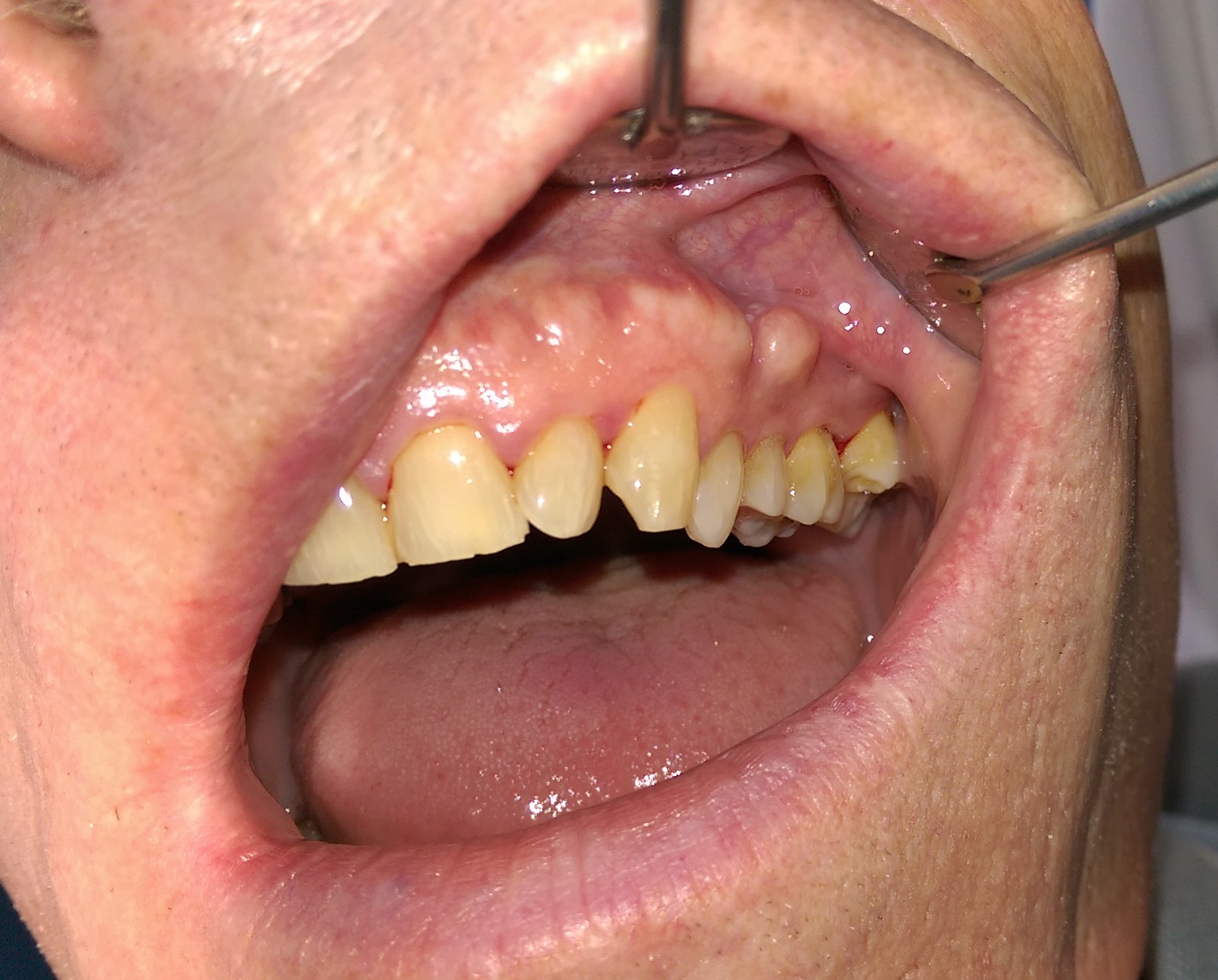 papiloma humano en mujeres boca