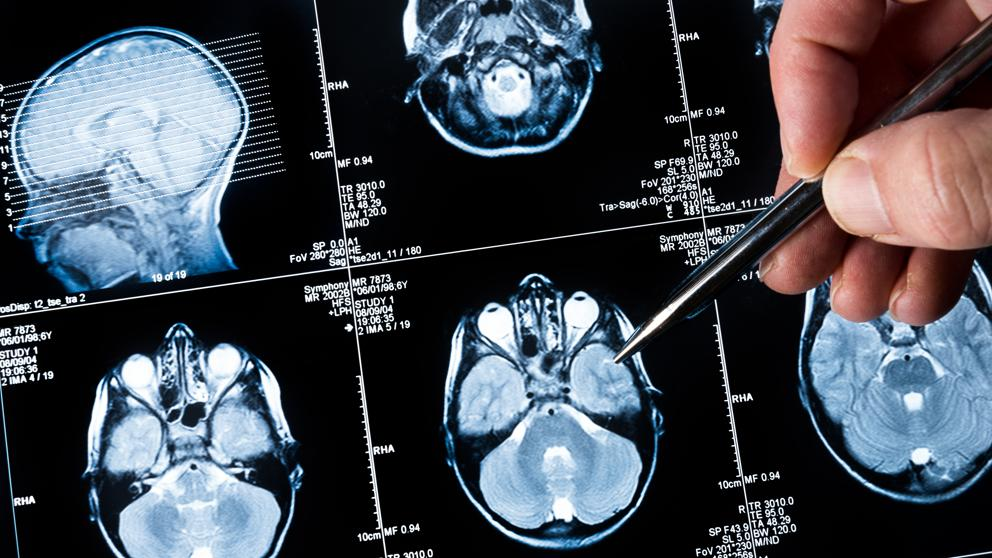 papiloma humano en los hombres tratamiento papillary thyroid cancer follicular variant