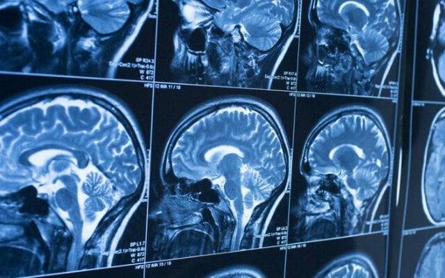 cancer cerebral sintomas y causas humanes papillomavirus zunge