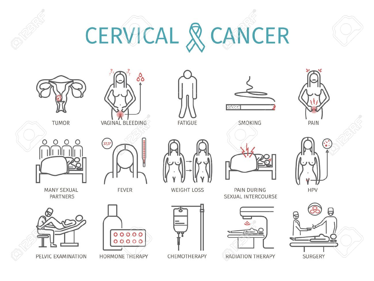 cancer cervical signos y sintomas
