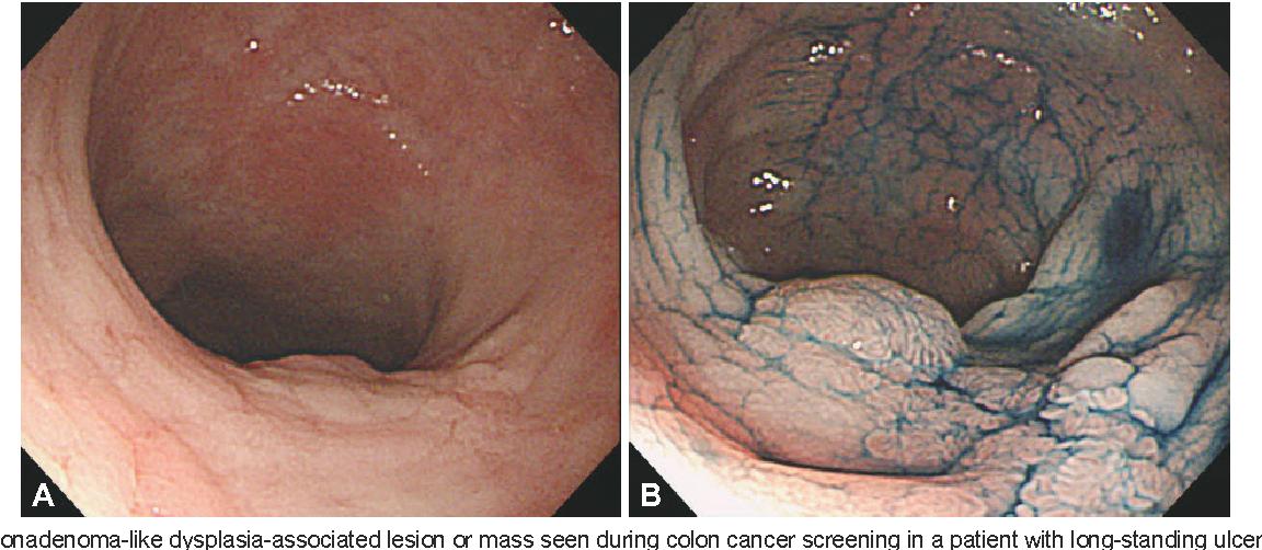 cancer colon ulcer papilloma parazita