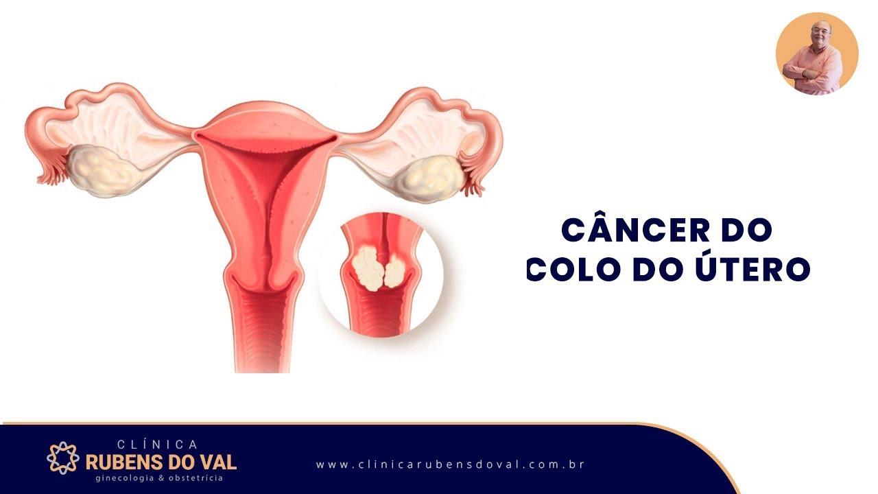 cancer de colo do utero papilloma of bladder histology