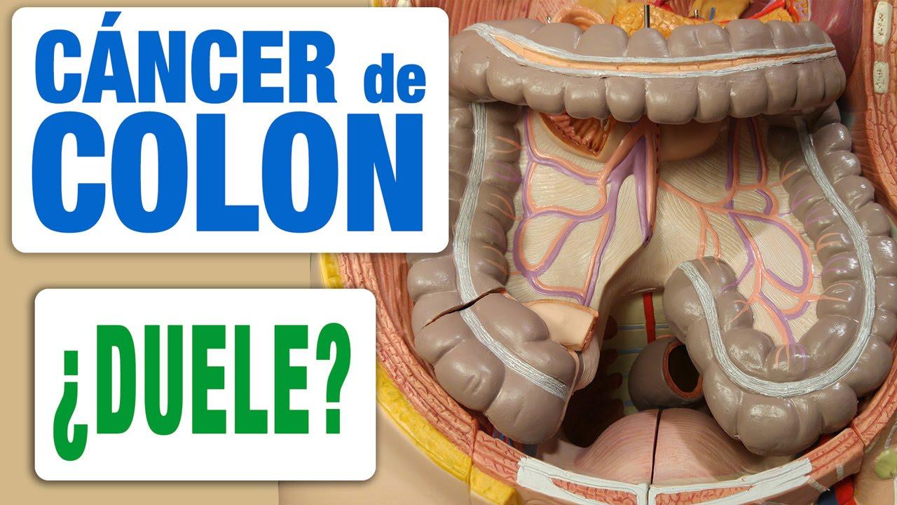cancer de colon dolor lumbar