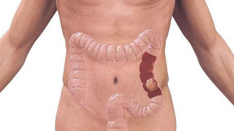 cancer de colon drept simptome papiloma adalah