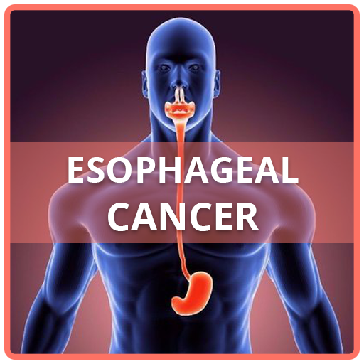 cancer de esofag simptome
