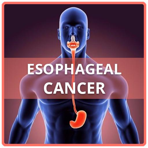 cancer de esofag simptome)