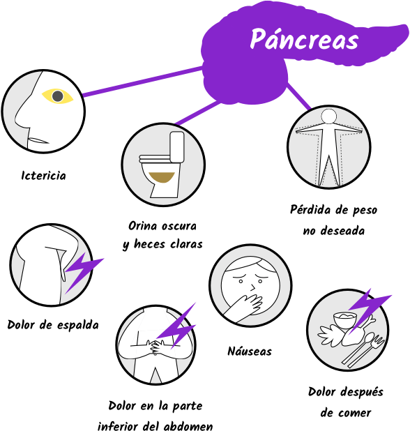 cancer de pancreas causas)