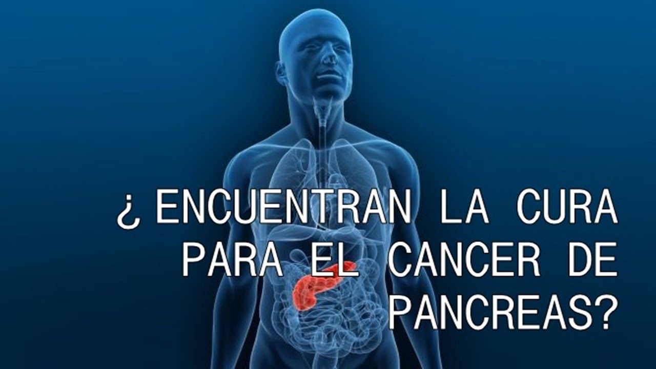 cancer de pancreas tratamiento natural)