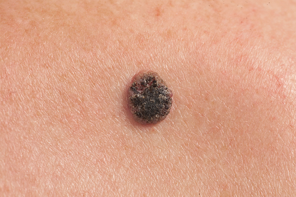 cancer de piele carcinom scuamos metodele parazitologice specifice