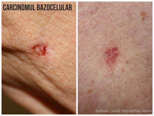 Cancerul de piele: ce poti face pentru a-l preveni