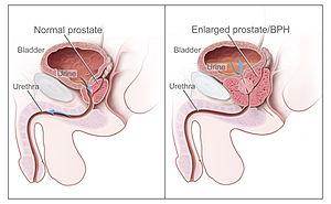 Nu terminați mult timp cu prostata