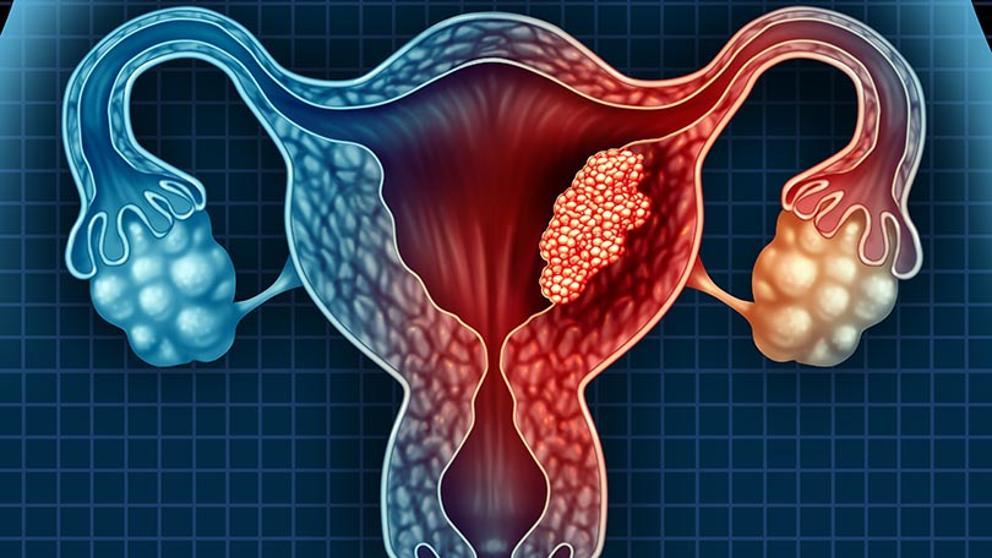 cancer san palpare gastric cancer case presentation
