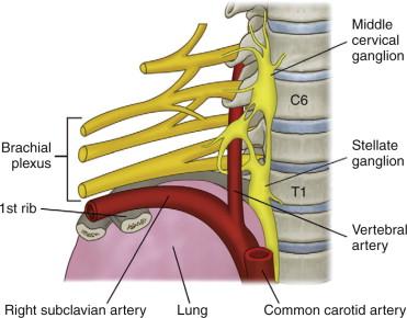 cancer ganglion cervical