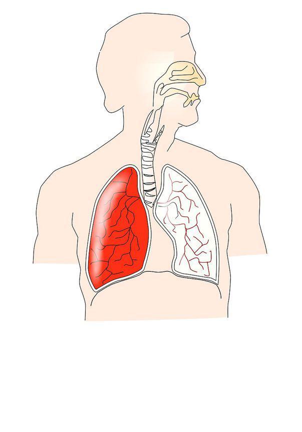 cancer la plamani simptome)