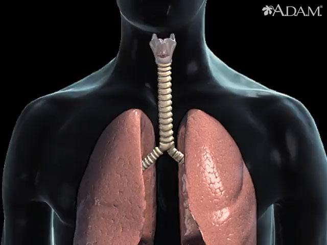cancer laringe pruebas)