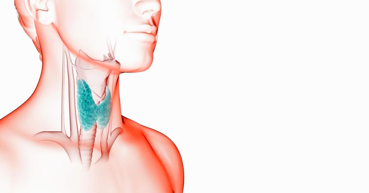 cancer malign glanda tiroida