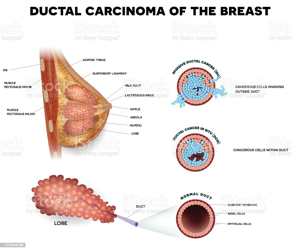 Carcinomul ductal in situ (CDIS) - Despre Cancer de San