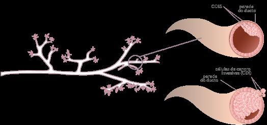 cancer mamar in situ la los oxiuros