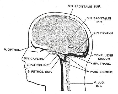 cancer oedeme cerebral)