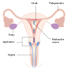 cancer of uterine cervix