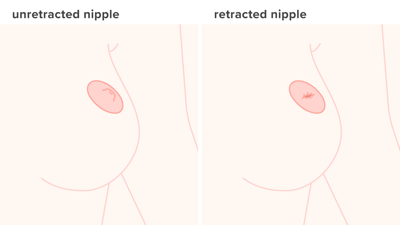 cancer on tip of nipple)