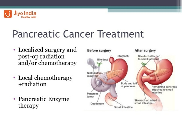 Cancerul pancreatic