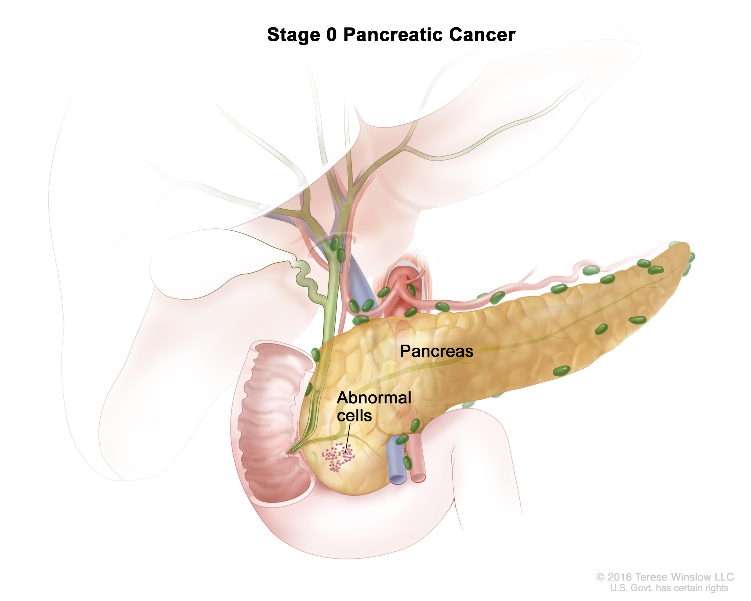 cancer pancreatic head)