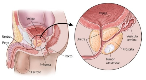 cancer prostata y huesos