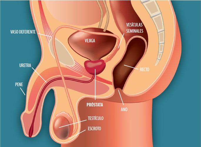 cancer prostata y huesos)