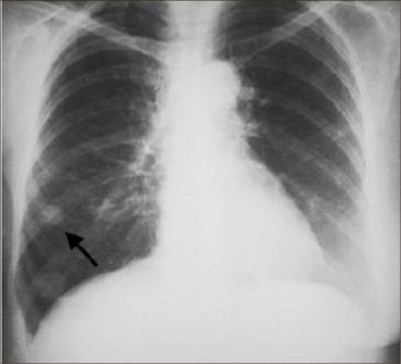 cancer pulmonar maligna