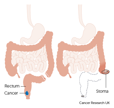 cancer rectal surgery)