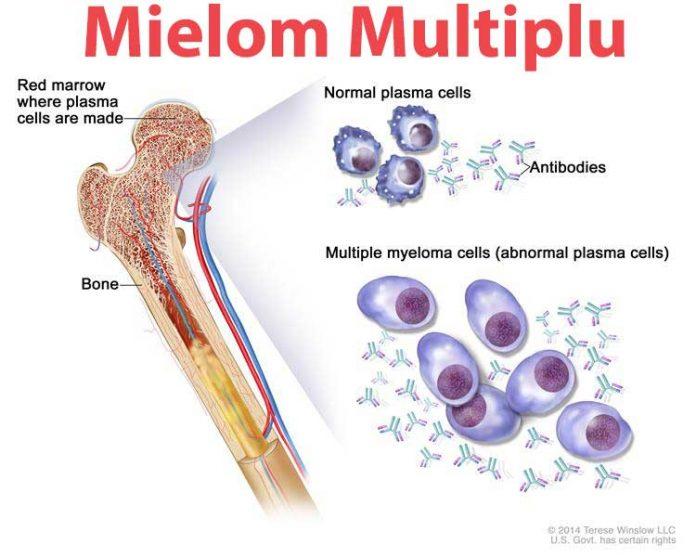 cancer sange simptome)