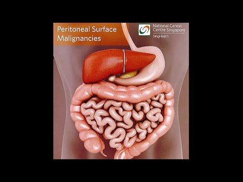 tratament contra oxiurilor la adulti papilloma invertito immagini