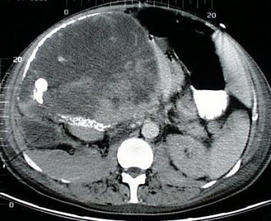 cancer suprarenal