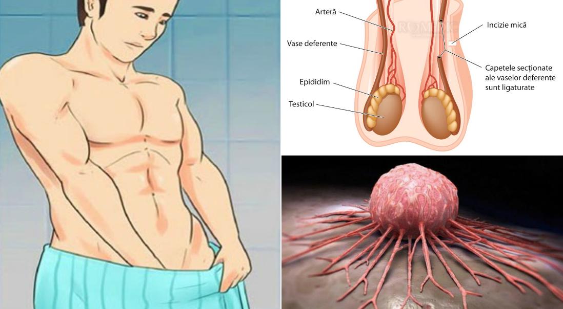 cancer testicule la barbati simptome)
