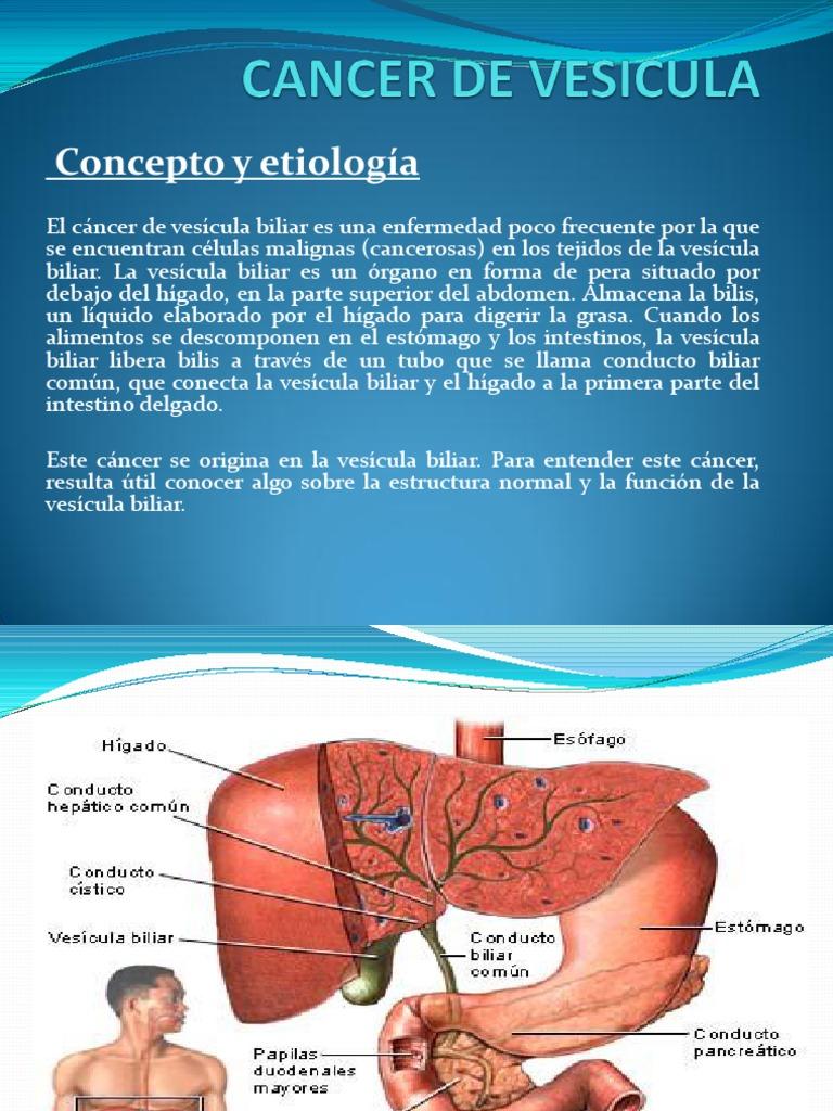 cancer vesicula biliar ppt gastric cancer no symptoms