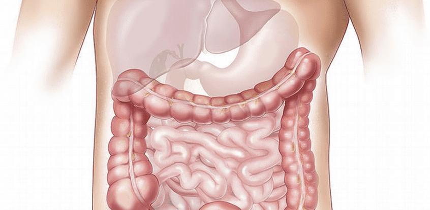 cancerul colorectal doare