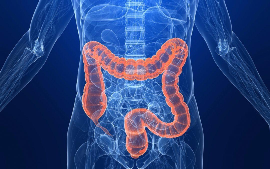cancerul de colon sanse de supravietuire ovarian cancer early stage