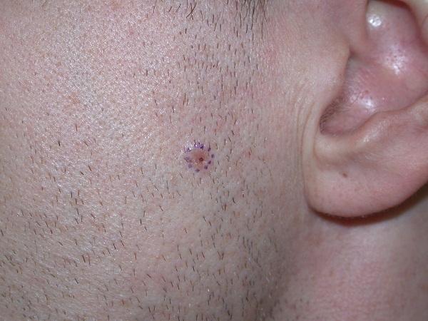 cancerul de piele e contagios