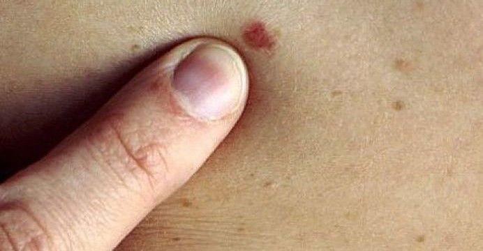 cancerul de piele se trateaza