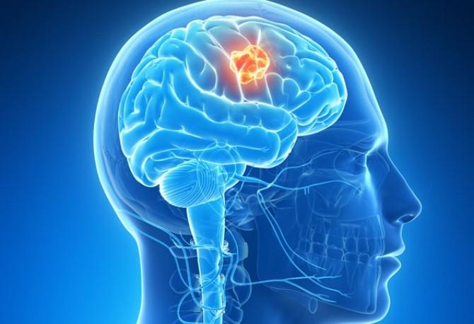 cancerul la cap