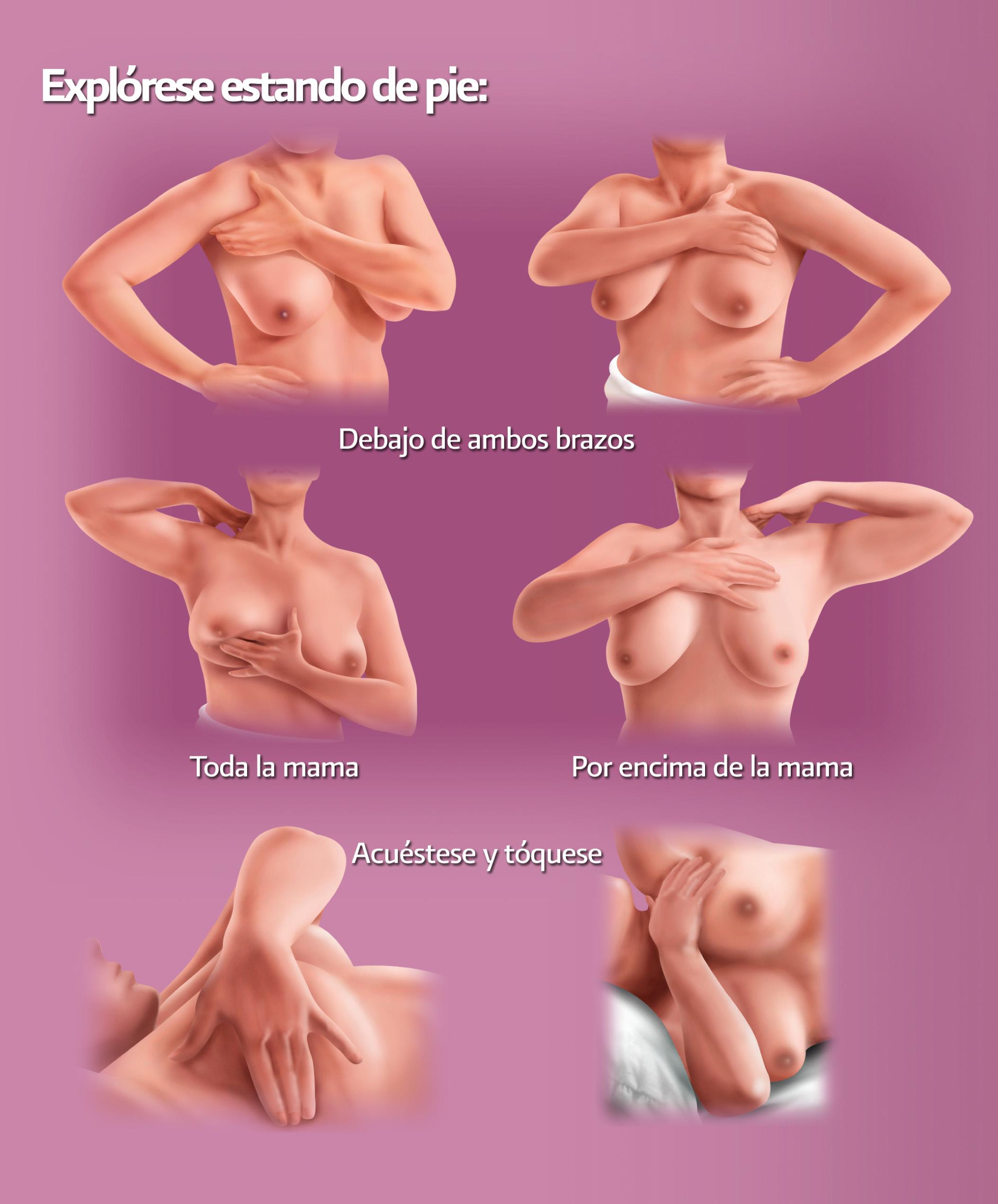 cancerul mamar forme clinice oxiuros medidas higienicas